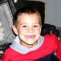 image 029-missing-front-teeth-31may03-jpg